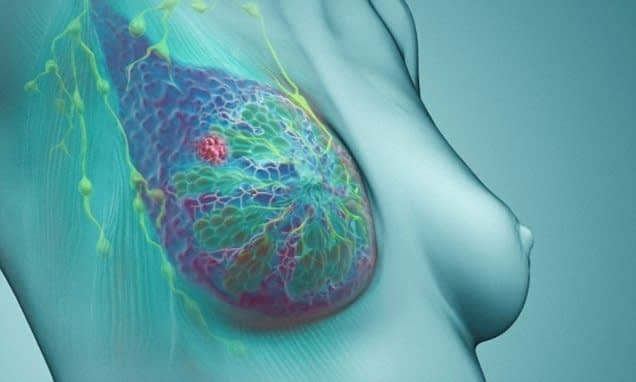 Breast Cancer Treatment Modified